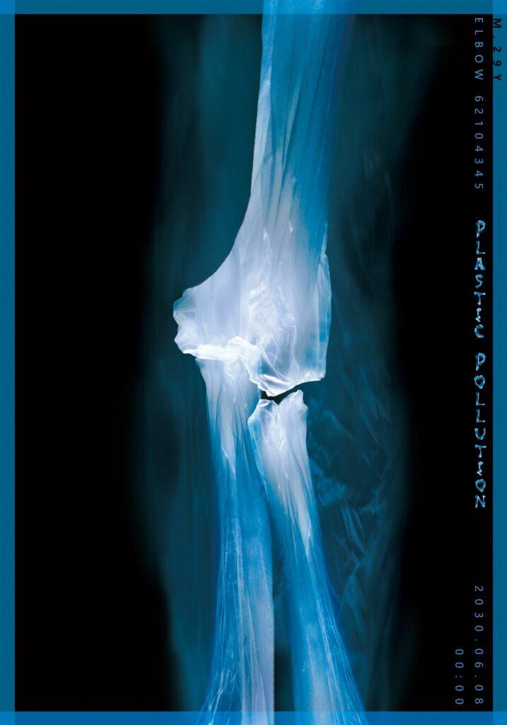 WangYihan-Plastic Bones1